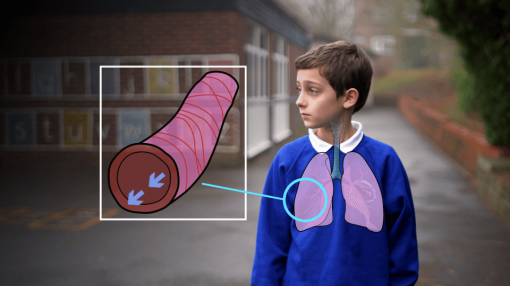 Child with an illustration of their lungs - Asthma Training for Schools & Carers